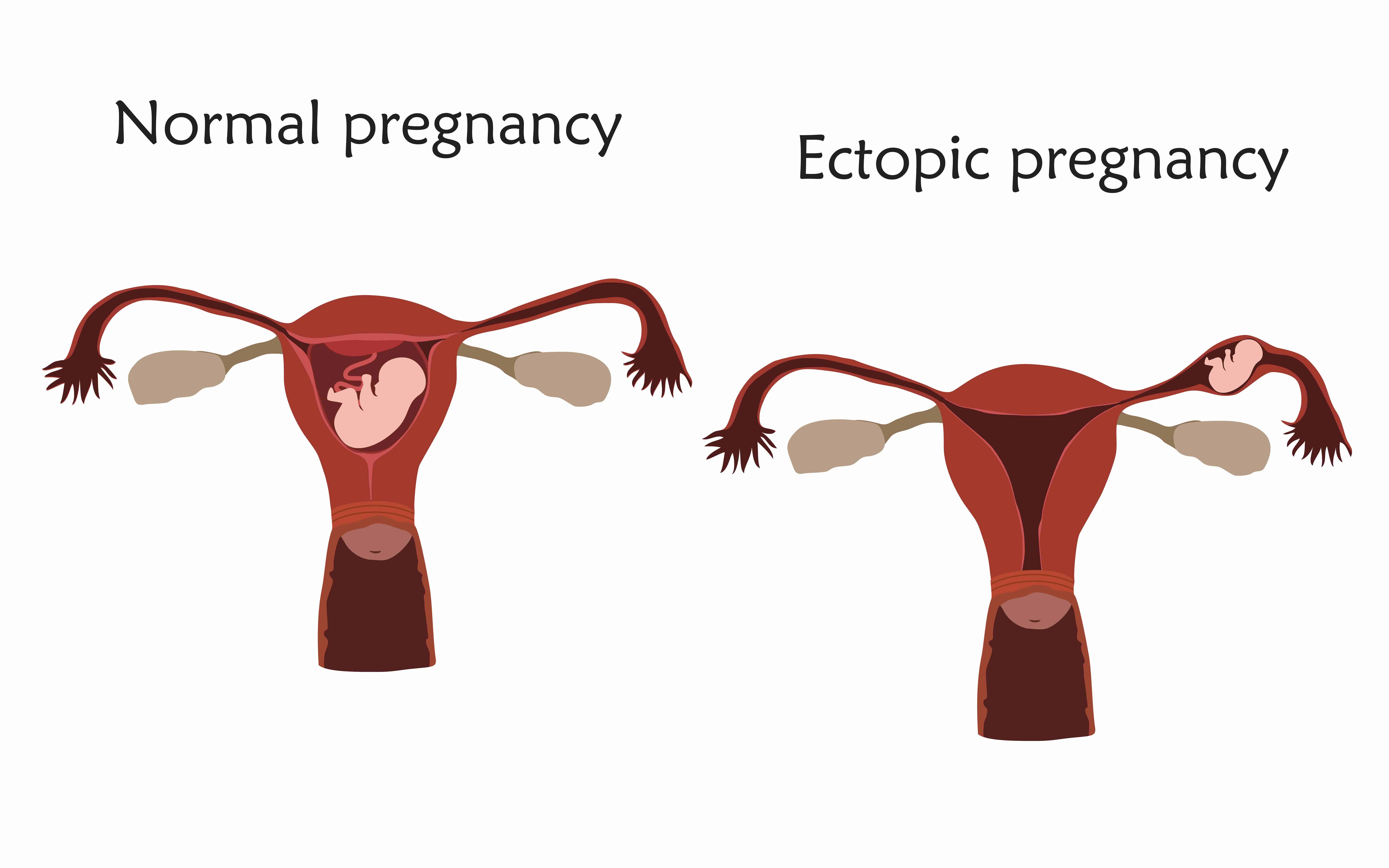 ciri ciri hamil di luar kandungan