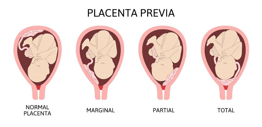 klinik-kehamilan-sehat-gejala-plasenta-previa-2